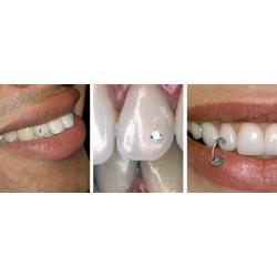 Пирсинг зубов?!?!?!